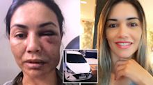 'My only way out': Uber driver credits trick for surviving brutal attack