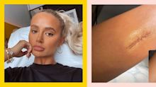 Molly-Mae Hague reveals she had surgery to remove a mole