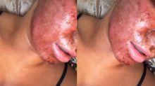 Estrela de reality mostra rosto machucado após tratamento com laser de R$ 14 mil