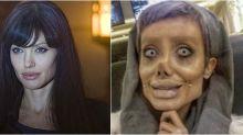Iraniana já fez mais de 50 plásticas para ficar parecida com Angelina Jolie. Deu certo?
