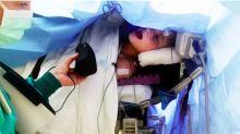 Una joven canta durante una cirugía cerebral para que los médicos puedan conservar su talento