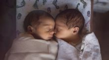 Scientists discovered second ever case of 'semi-identical' twins, born from one egg and two sperm