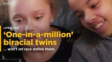 Biracial twins, one black, one white, won't let race define them