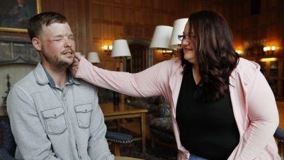 Increíble: conoce a la viuda del que le donó su cara