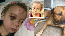 Parents' 'worst nightmare' after family dog mauls toddler