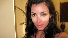 How to Treat a Bad Sunburn and Hide It Instantly