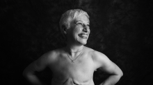 Defiant cancer patients reveal surgery scars in moving photo series
