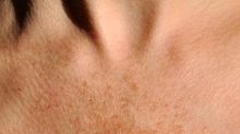Those Weird Spots on Your Face Could Actually Be Melasma