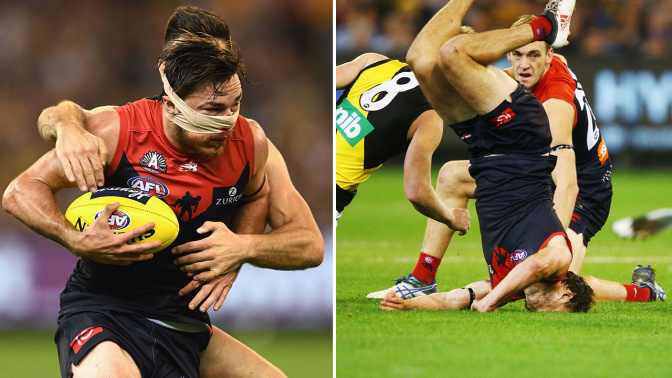 Hibberd praised for bloody, courageous act