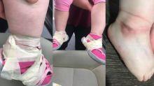 Mãe fica horrorizada depois que o maternal 'colou os pés de sua filha com fita crepe'