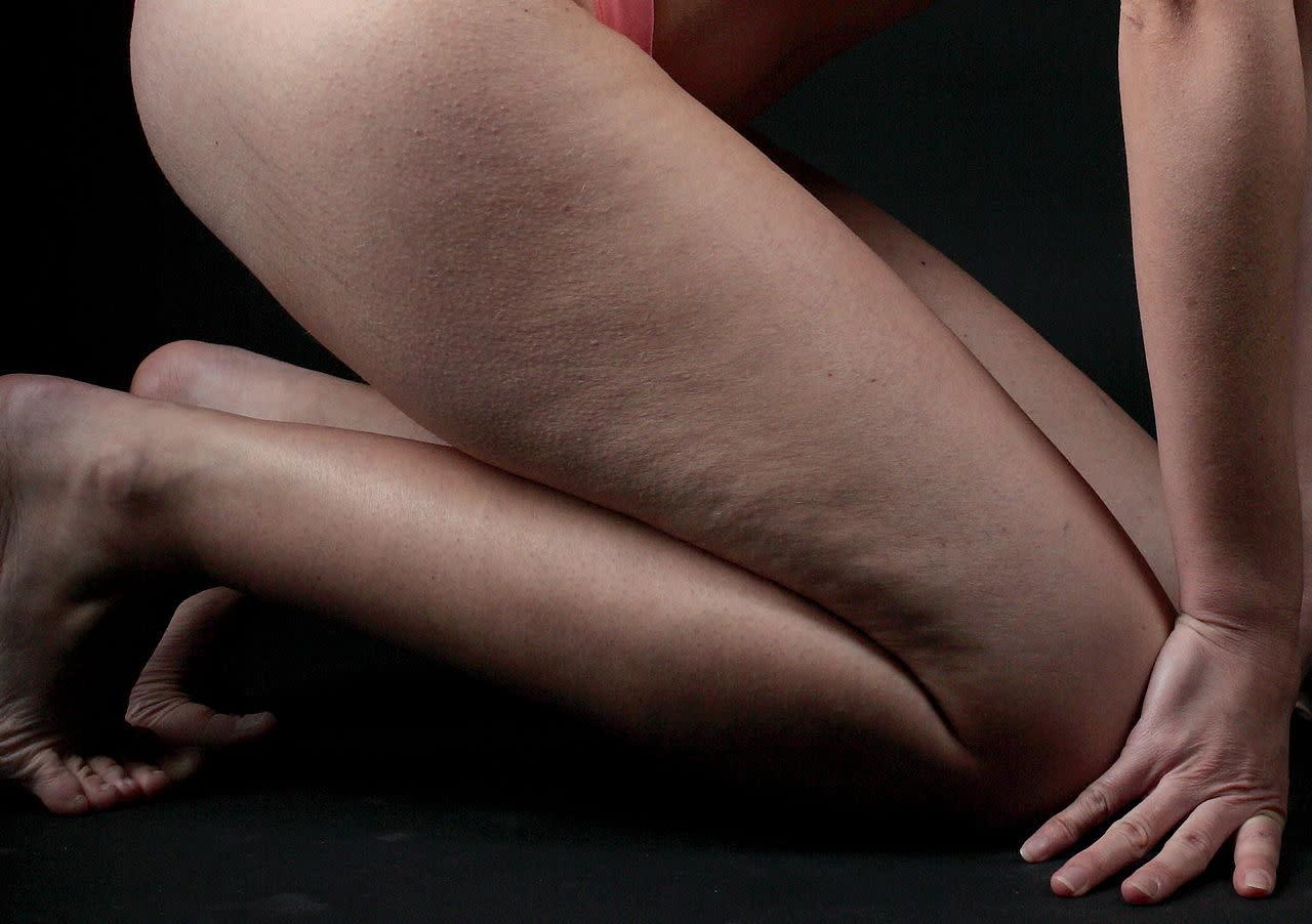 Come Eliminare La Cellulite Dai Glutei E Dalle Gambe Naturalmente