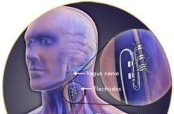 VNS implant might fix the ringing in your ears