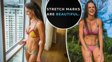Husband's epic response to trolls criticising wife's stretch marks