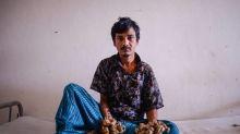 Bangladesh: «L'homme-arbre» demande à être amputé pour soulager ses souffrances