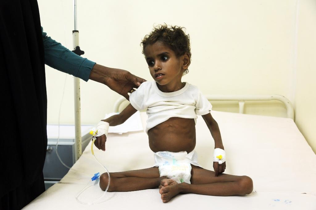A malnourished child receives treatment at a hospital in the Yemeni port city of Hodeidah in this November 5, 2017 file photo