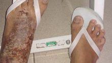 Cadeia em Roraima tem surto de bactéria que corrói pele