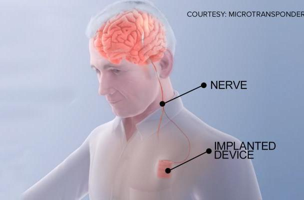 'Brain pacemaker' could help stroke patients recover quicker