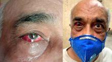 ShivSenik's Gunda Raj is Now Highlighted Since Retired Naval Officer was Beaten Badly