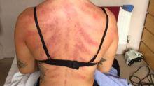 Cabeleireira mostra imagem impactante de como o trabalho afetou seu corpo