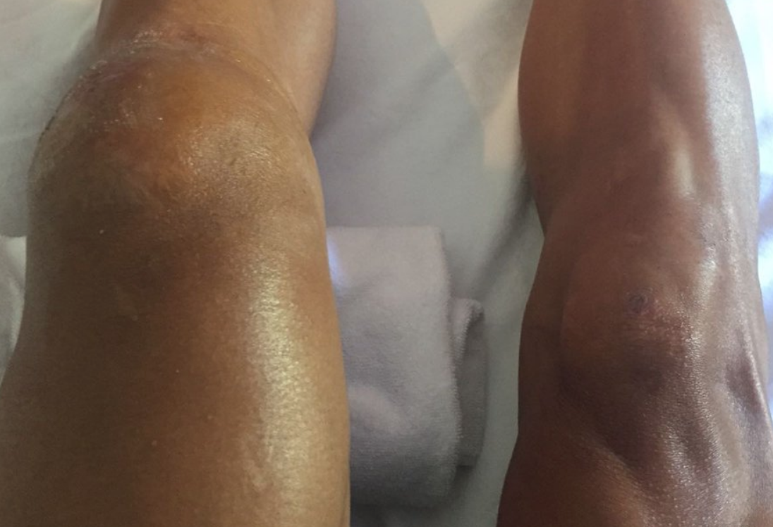 Philippe Gilbert Crashes Posts Pictures Of Broken Kneecap