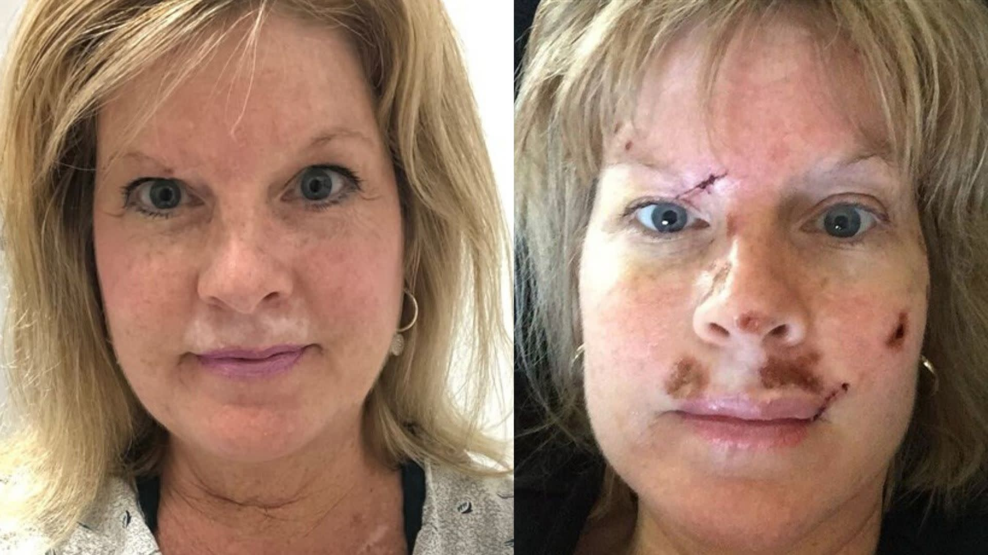 Judy Cloud Skin Cancer Diagnosis And Living With Bcc