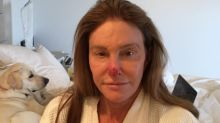 Caitlyn Jenner shares graphic photo after having skin cancer cut from her nose