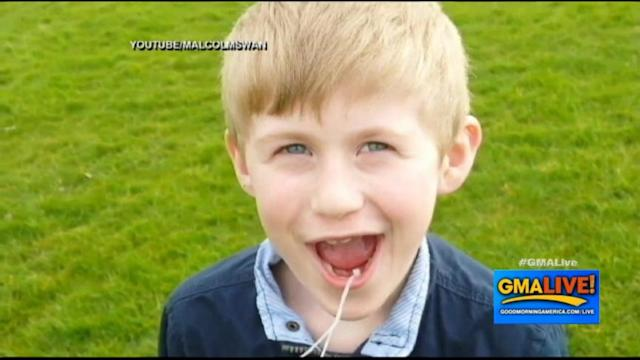 Dad Pulls Son's Tooth With Helicopter