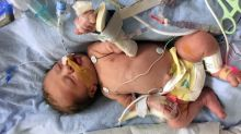 Heart surgery performed on baby inside the womb