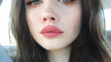 The surprising action one acne blogger took to clear up her skin