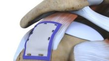 New study shows 96% healing of hard to treat large and massive rotator cuff tears with Smith+Nephew's REGENETEN™ Bioinductive Implant