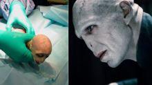 Tiembla Harry Potter: Lord Voldemort está de vuelta, en forma de bebé mono