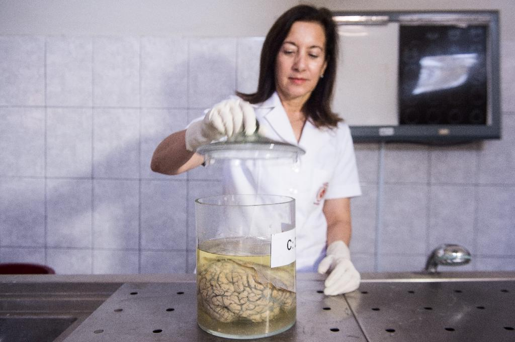 Doctor Diana Rivas opens a jar containing a human brain immersed in formaldehyde at the Santo Toribio de Mogrovejo Hospital (AFP Photo/Ernesto Benavides)