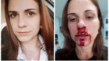 Mulher posta foto com rosto ensanguentado para denunciar agressão do ex