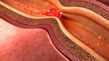 Depressão duplica o risco de morte por doença arterial coronariana, descobre pesquisa