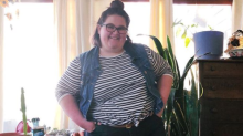 This amputee blogger is changing the conversation around body positivity