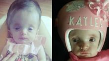 Girl born with head weighing 5lb undergoes surgery to rebuild her skull