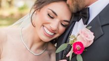 Everything You Need to Know About Getting Invisible Aligners Before Your Wedding