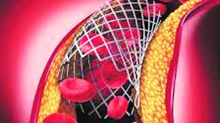 Don't obsess over local stents, here's why