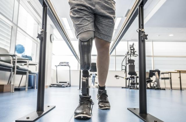 AT&T's LTE-M device can help doctors perfect prosthetic limbs