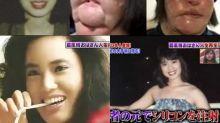 整容過度致毁容 57歲韓國「電風扇阿姨」離世