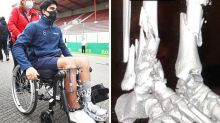 'Like gelatine': F2 driver shares horrific x-rays after fatal crash