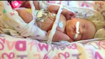 Family Welcomes Rare Set of Triplets
