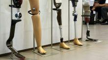 Die Lage des Prothesenherstellers Ottobock ist prekär