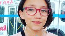 Saskatchewan girl with vitiligo inspired by supermodel Winnie Harlow