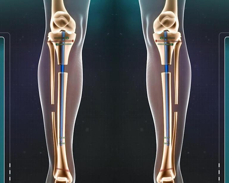 Limb lengthening surgery makes patients taller