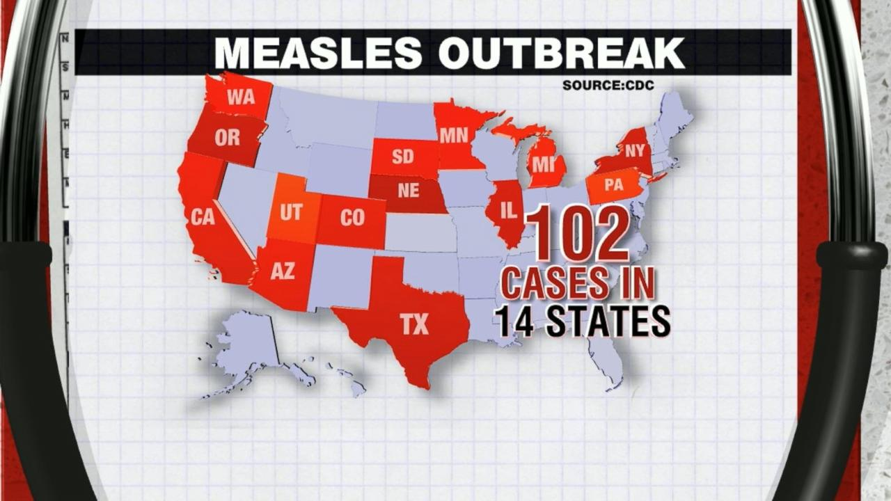 US Measles Outbreak Growing, CDC Says