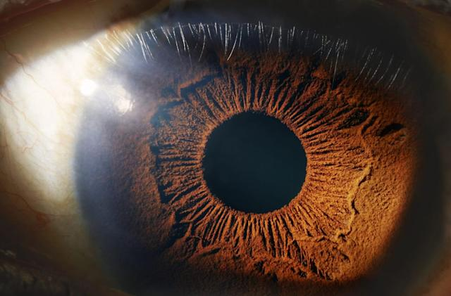 Robots can perform surgery inside your eyeballs