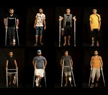 In Gaza protests, Israeli troops aim for the legs