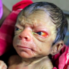 This newborn baby has the looks of an 80-year-old after being born with rare condition