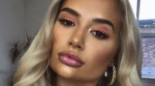 Molly-Mae opens up about getting her lip fillers dissolved